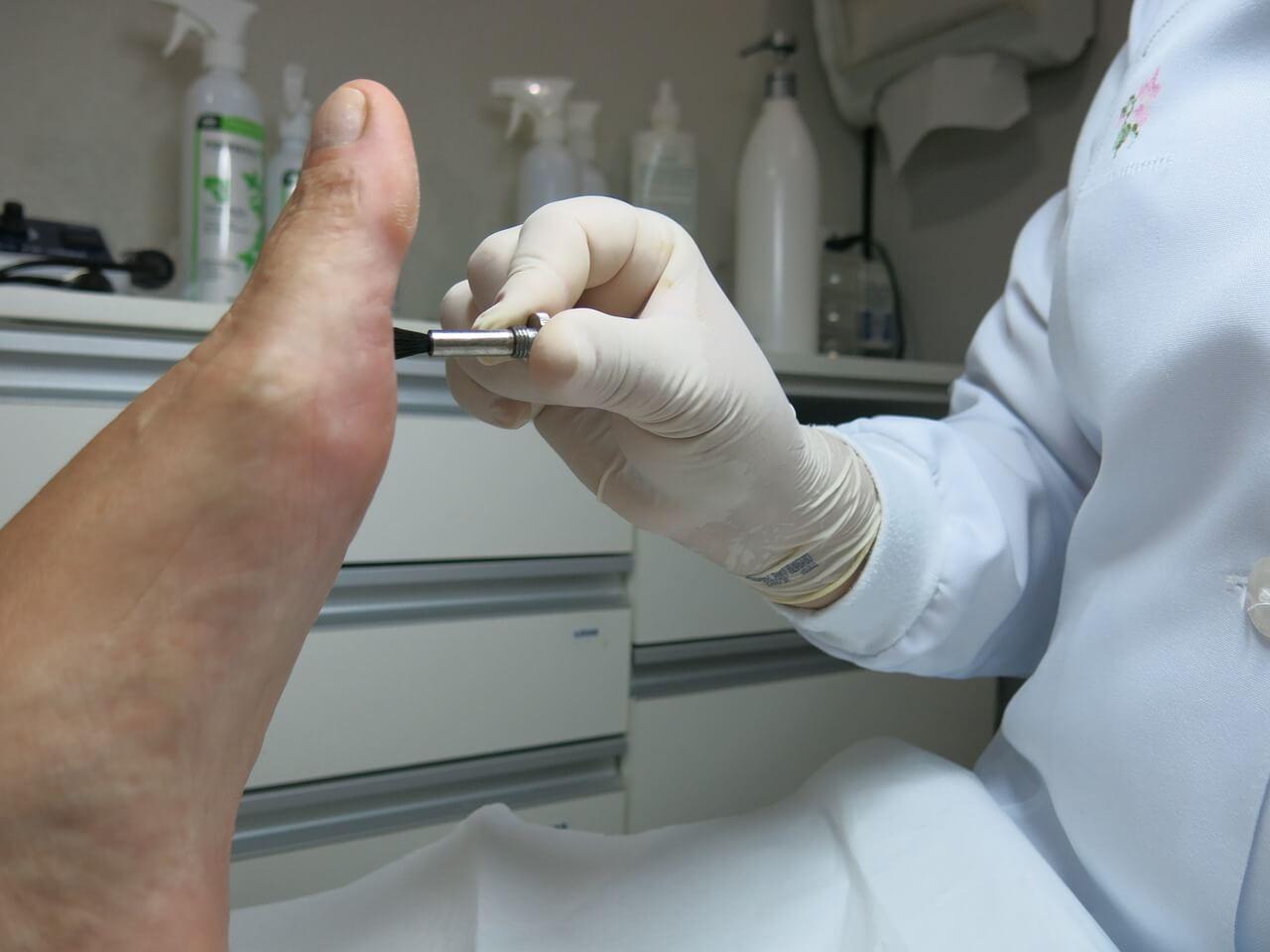 Fußpilz behandeln - so geht´s